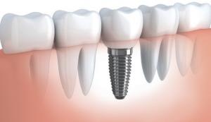 cabinet stomatologic implant dentar