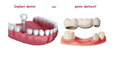 implant dentar sau punte dentara