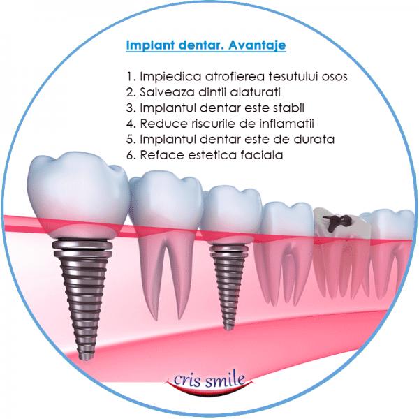 avantaje implant dentar-min